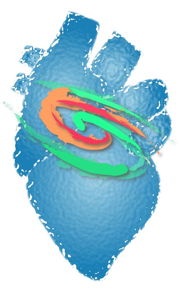 研究紹介:WPW症候群コンピュータシミュレーション