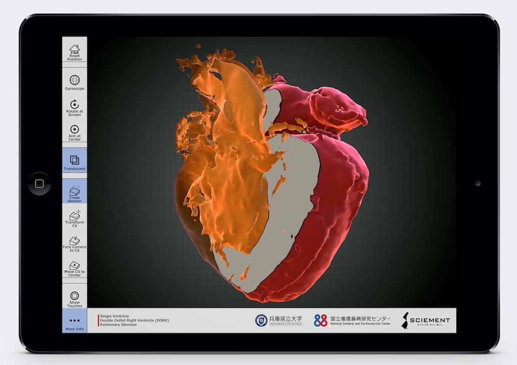 研究紹介:3DCG心臓Viewer「MacroView」